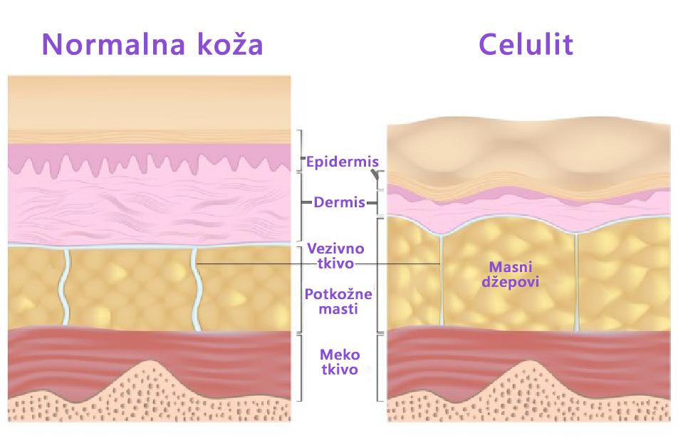 Zašto nastaje celulit i kako ga se rešiti